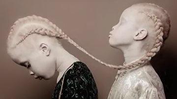 «Редкие цветы»: близняшки-альбиносы