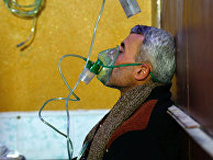 Сирийский мужчина в больнице после газовой атаки в городе Дума