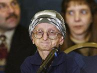 Американец Джон Такет, страдающий прогерией во время пресс-конференции