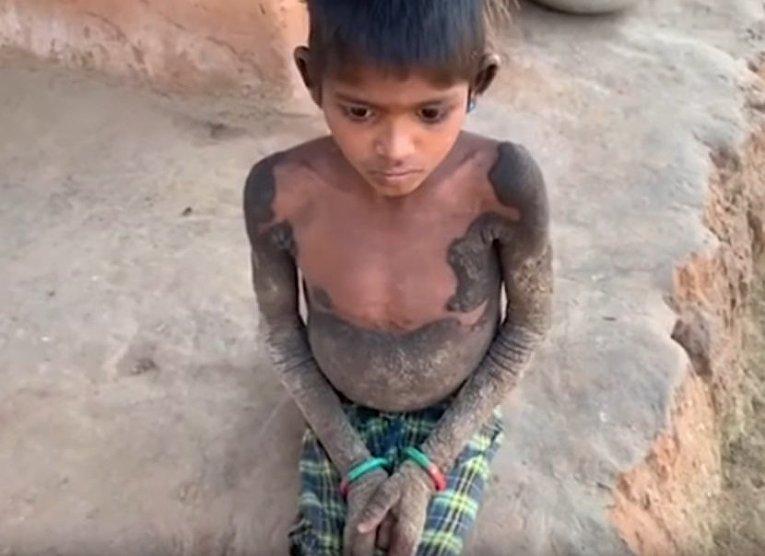 Настоящий ад: девочка превратилась в камень