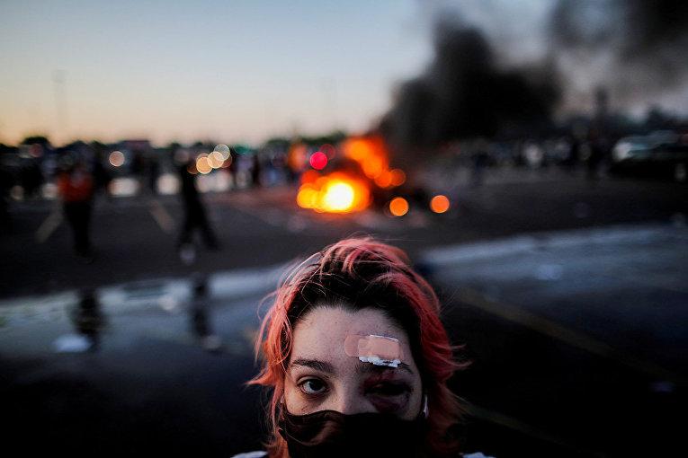 Участница акций протеста в Миннеаполисе, пострадавшая от резиновых пуль во время столкновений с полицией