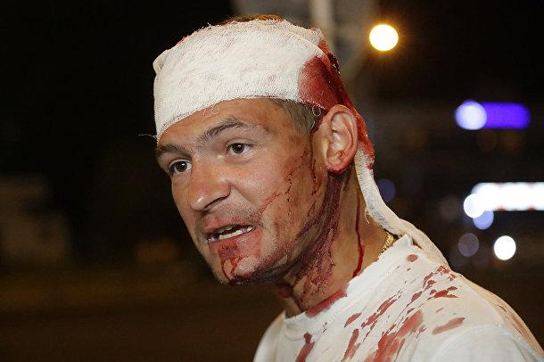 Мужчина, раненный во время столкновений с милицией в Минске, Беларусь